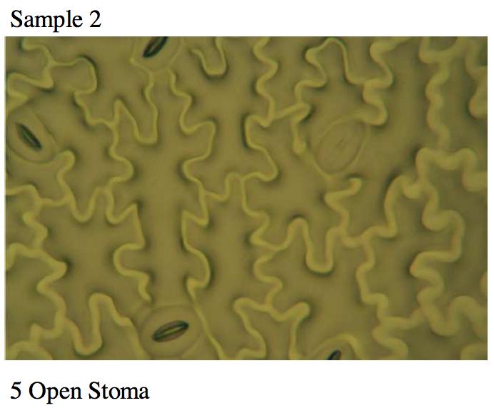 Stoma5