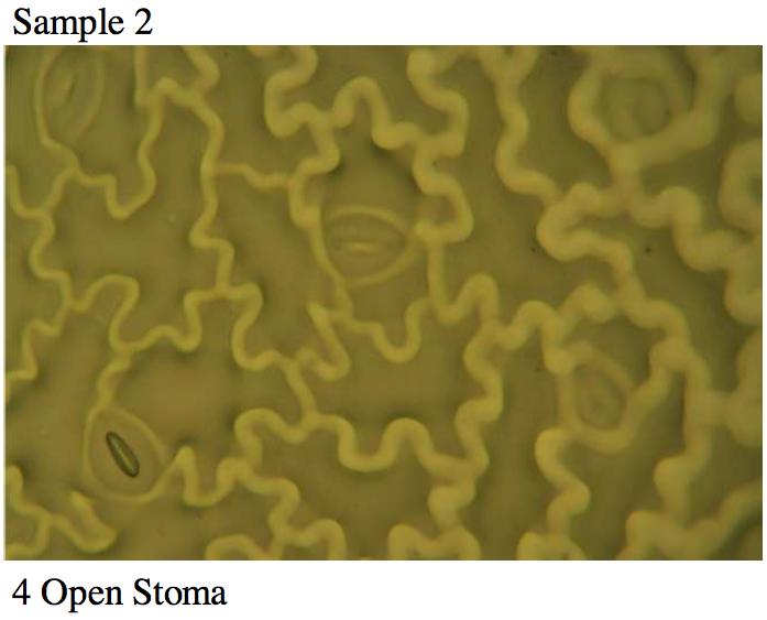 stoma1